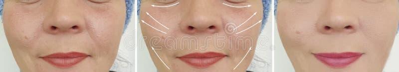 A cara da mulher enruga a diferença de levantamento da remoção do procedimento do resultado antes e depois da correção fotografia de stock royalty free