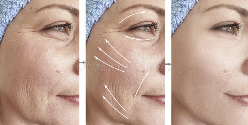 A cara da mulher enruga a diferença de levantamento da remoção do rejuvenescimento do procedimento do resultado antes e depois da imagens de stock