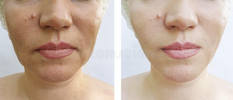 A cara da mulher enruga a diferença do resultado antes e depois da correção imagens de stock