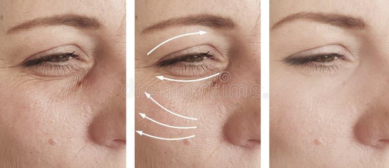 A cara da mulher enruga a diferença da remoção do procedimento do resultado antes e depois da correção fotografia de stock