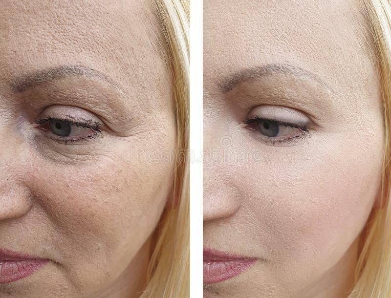 A cara da mulher enruga a diferença da remoção do resultado antes e depois da correção imagem de stock royalty free