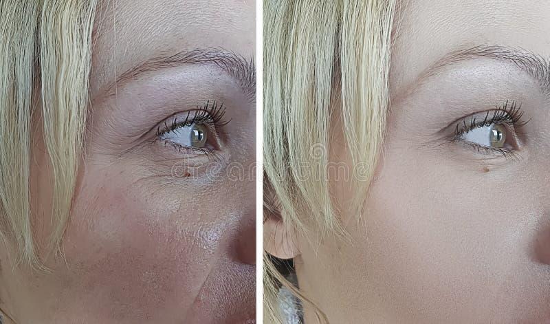 A cara da mulher enruga a inchação da tensão da diferença da correção antes e depois dos resultados terapia, tratamento da remoçã foto de stock