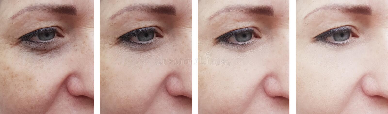 A cara da mulher enruga o paciente da correção antes e depois do rejuvenescimento do tratamento da cosmetologia fotografia de stock