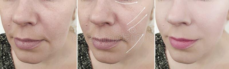 A cara da mulher enruga a remoção do olho do efeito da diferença da seta antes e depois do tratamento fotos de stock royalty free