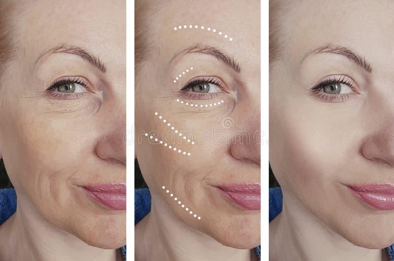 A cara da mulher enruga-se antes após a correção de hidratação de hidratação do biorevitalization do tratamento da diferença, ten fotografia de stock