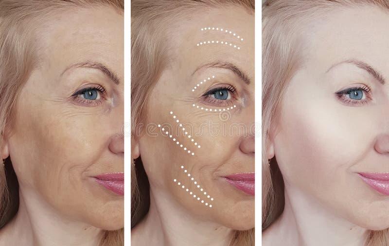 A cara da mulher enruga-se antes após a correção de hidratação de hidratação do biorevitalization do tratamento, tensão fotos de stock royalty free