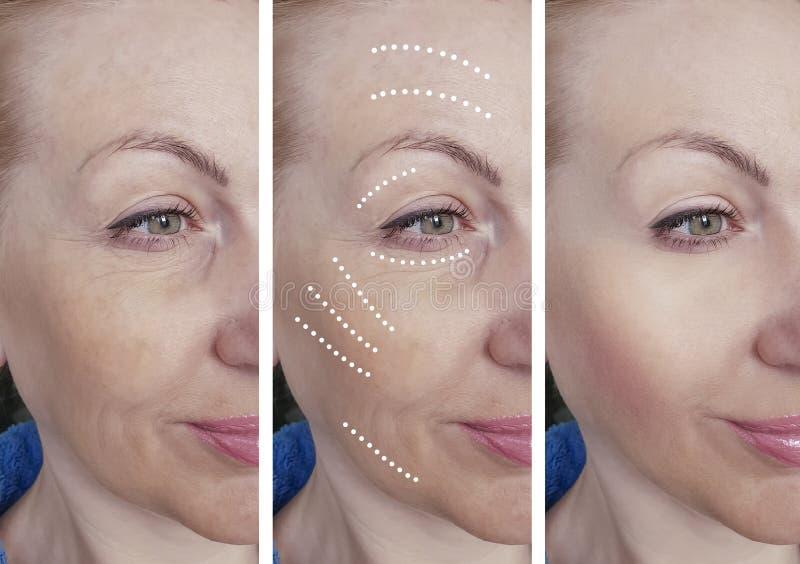 A cara da mulher enruga-se antes após procedimentos de hidratação de hidratação da correção do biorevitalization do tratamento da imagens de stock royalty free