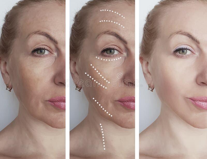 A cara da mulher enruga-se antes após procedimentos de hidratação da correção do biorevitalization do tratamento da terapia da re foto de stock royalty free