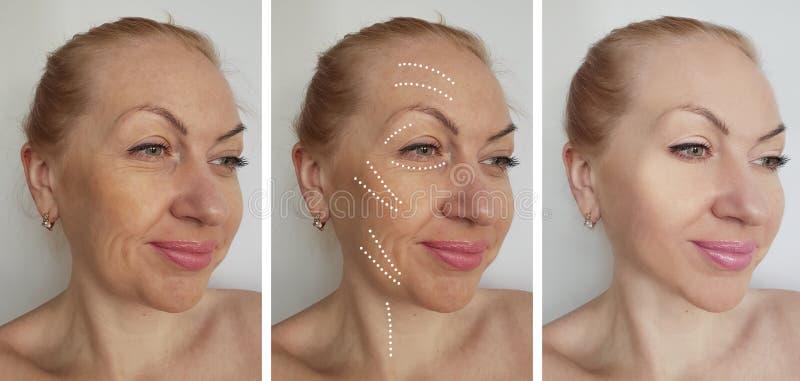 A cara da mulher enruga-se antes após procedimentos de hidratação de hidratação da correção do biorevitalization do tratamento da fotografia de stock royalty free