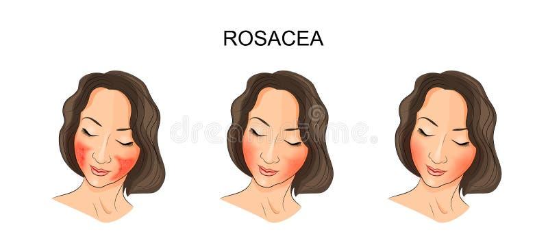 A cara das meninas, rosacea ilustração royalty free