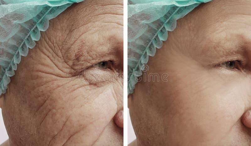 Cara de las arrugas de un viejo hombre antes y después de procedimientos fotos de archivo libres de regalías