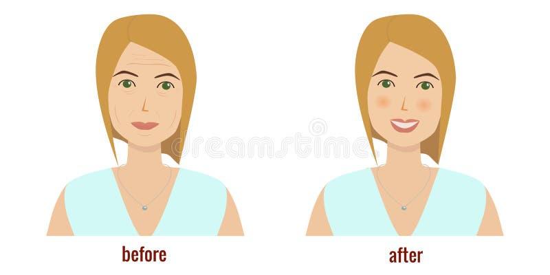Cara de uma mulher antes e depois do tratamento facial rejuvenation ilustração stock