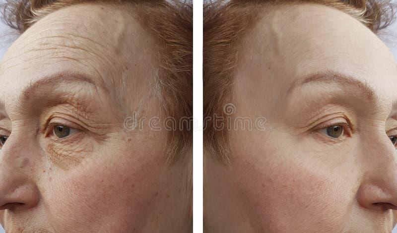 A cara de uma mulher das pessoas idosas enruga o procedimento da dermatologia antes e r aftetherapy foto de stock royalty free