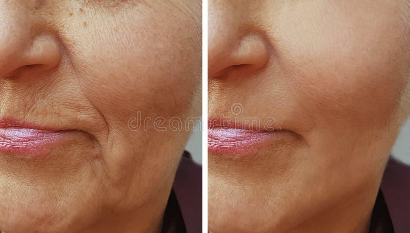 Cara de uma mulher idosa do enrugamento antes e depois imagem de stock