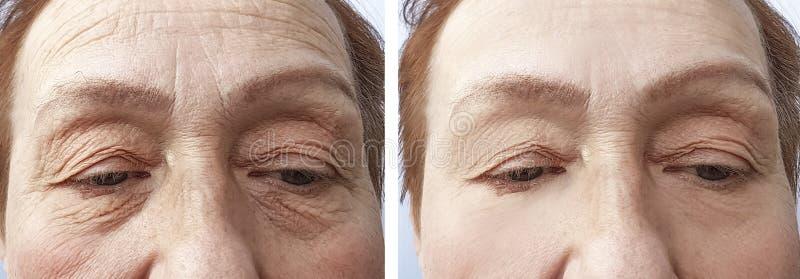Cara de una corrección de elevación de las arrugas del tratamiento de la mujer mayor antes y después de procedimientos imágenes de archivo libres de regalías
