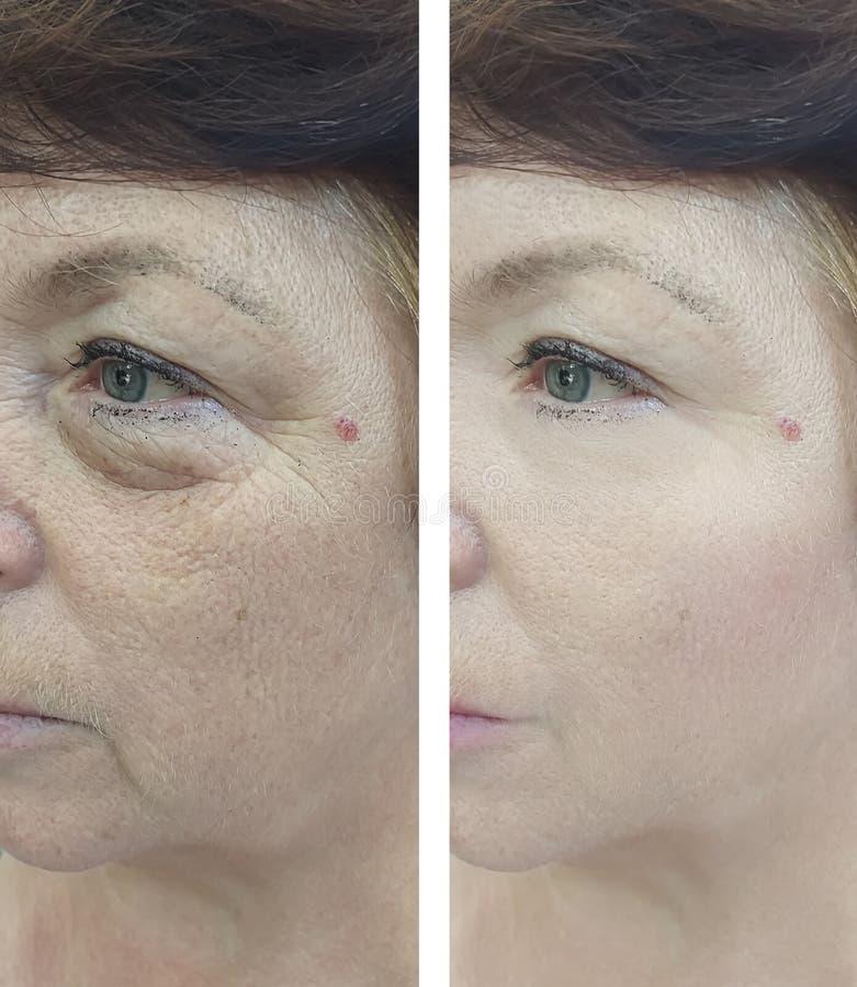 Cara de una mujer mayor antes y después del tratamiento foto de archivo