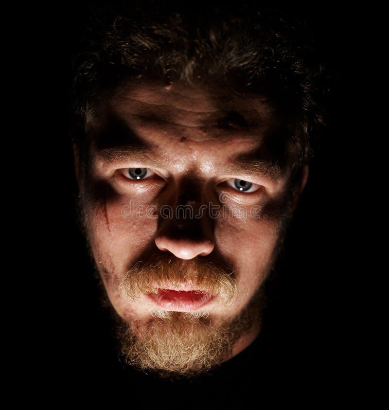 Cara del hombre con los pequeños dolores imagen de archivo libre de regalías
