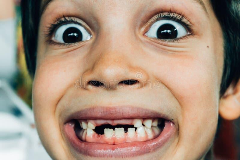 Cara do menino que sorri com dentes faltantes imagens de stock royalty free