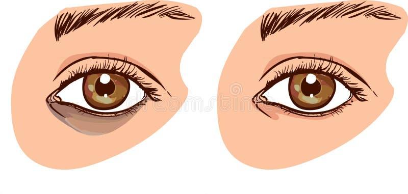A cara do ` s da mulher com círculos escuros sob os olhos O conceito o ilustração stock