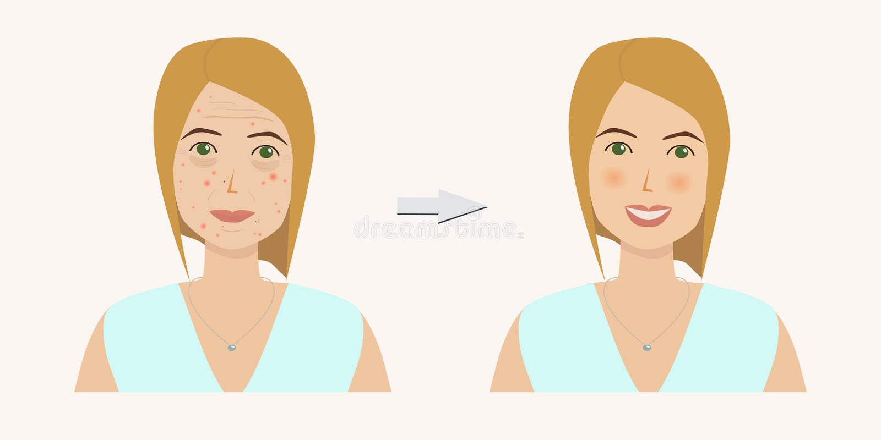 Cara do ` s da mulher com problemas de pele antes e depois do tratamento da pele ilustração royalty free