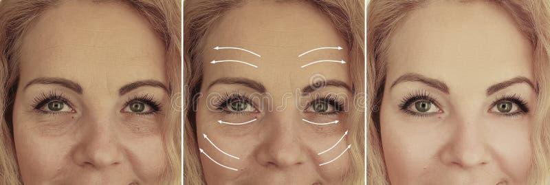 A cara enruga a diferença da mulher antes e depois do tratamento do rejuvenescimento foto de stock royalty free