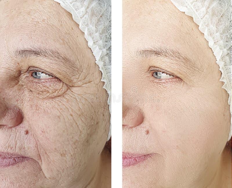 A cara enruga a diferença idosa da mulher antes e depois do tratamento do rejuvenescimento fotos de stock royalty free