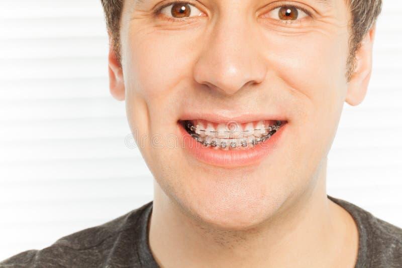 Cara feliz do homem novo com cintas dentais fotografia de stock royalty free