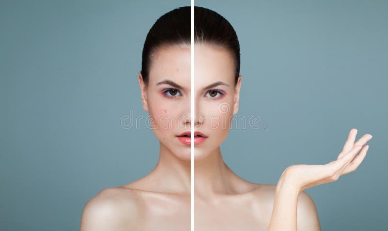 Cara femenina joven con problema de piel y la piel clara imagen de archivo