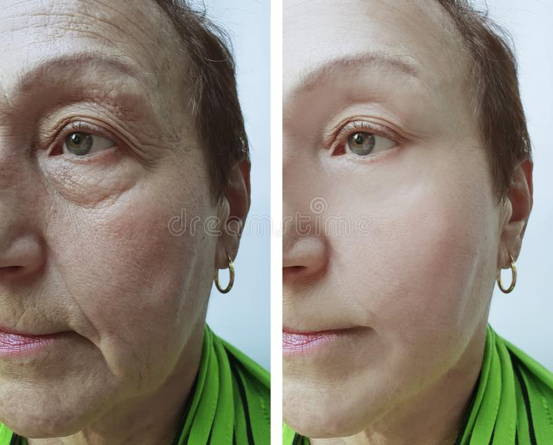 Cara mayor de la mujer antes y después de procedimientos de elevación fotografía de archivo