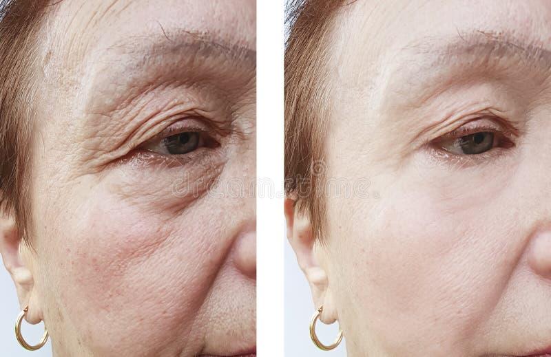 Cara mayor de la piel de la mujer antes y después de procedimientos de elevación del tratamiento fotografía de archivo