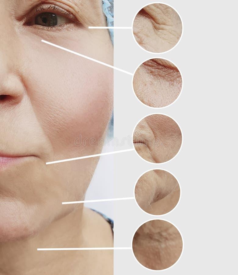 Cara mayor de la piel de la mujer antes y después de procedimientos de elevación del tratamiento del retiro imagen de archivo libre de regalías