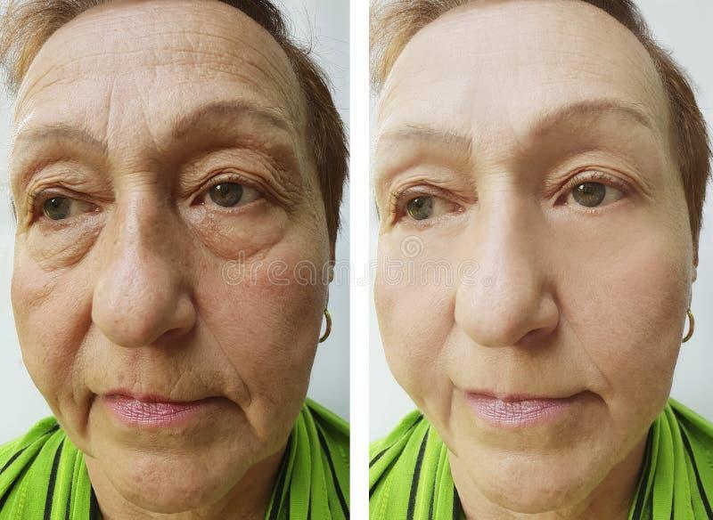 Cara mayor de la piel de la mujer antes y después de procedimientos de elevación imagen de archivo libre de regalías