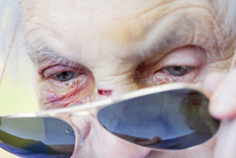 Cara mayor herida del ` s de la mujer fotografía de archivo libre de regalías
