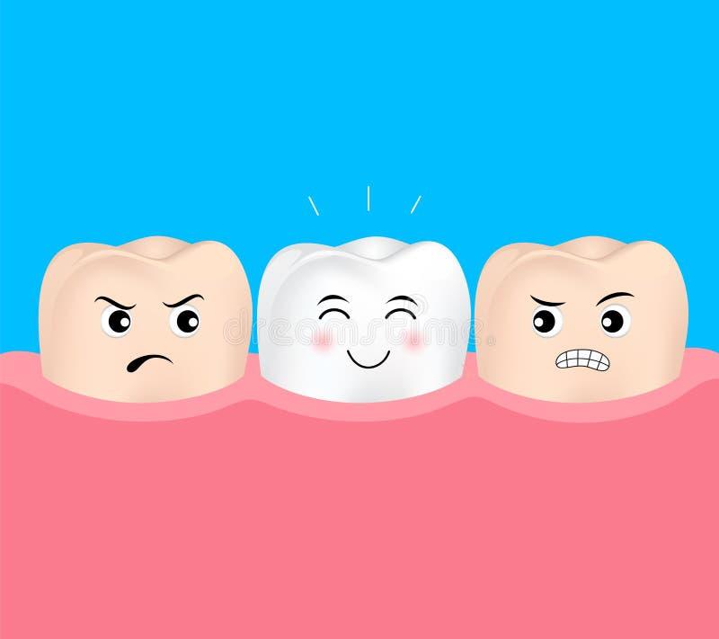 Caractère dentaire de dent de placages Avant et après illustration libre de droits