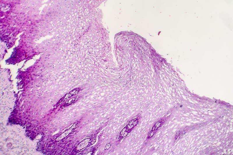 Carcinoma de células escamosas foto de archivo