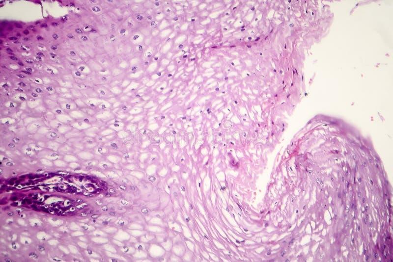 Carcinoma de células escamosas imágenes de archivo libres de regalías