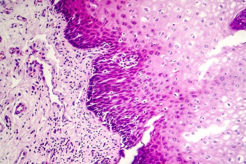 Carcinoma de células escamosas fotografía de archivo