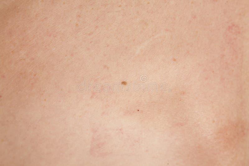 Carcinoma de células escamosas de Keratinizing de la piel imágenes de archivo libres de regalías