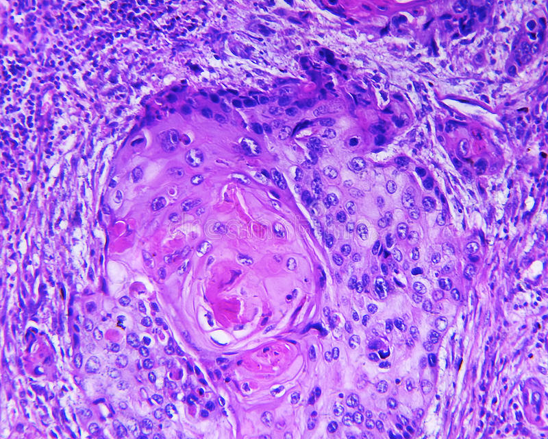 Carcinoma de células escamosas de un ser humano imagen de archivo libre de regalías