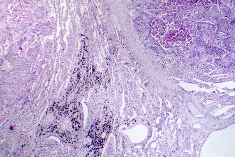 Carcinoma de células escamosas del pulmón fotos de archivo