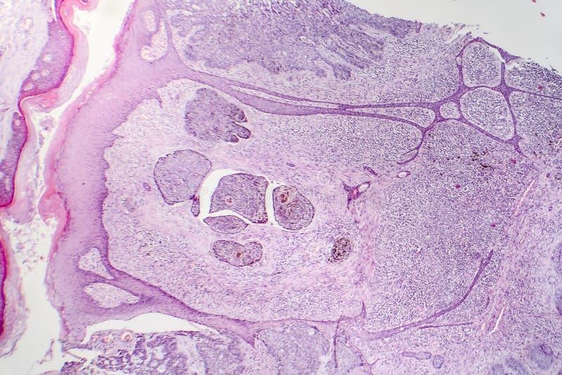 Carcinoma de la célula básica imágenes de archivo libres de regalías