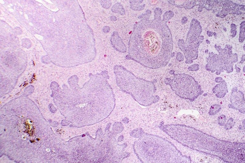 Carcinoma de la célula básica fotografía de archivo libre de regalías