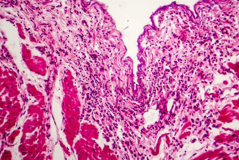 Carcinoma de la célula del sello imagen de archivo libre de regalías