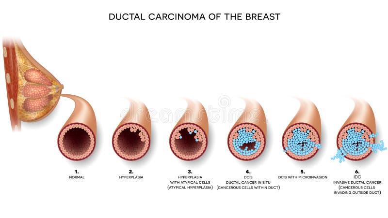 Carcinoma del pecho ilustración del vector