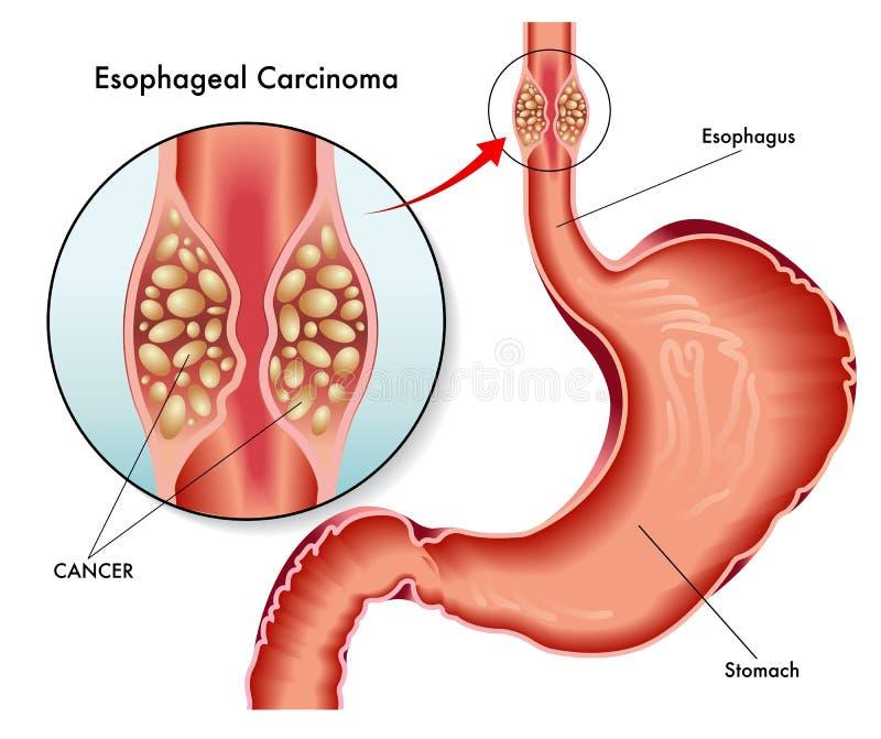 Carcinoma esofágica ilustração stock