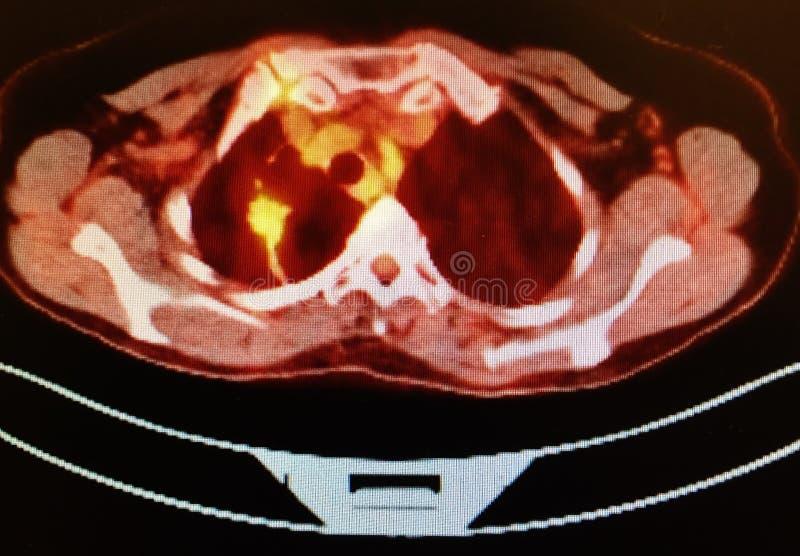Carcinoma för lob för älsklings- lunga för ct-bildläsning höger lägre royaltyfri fotografi
