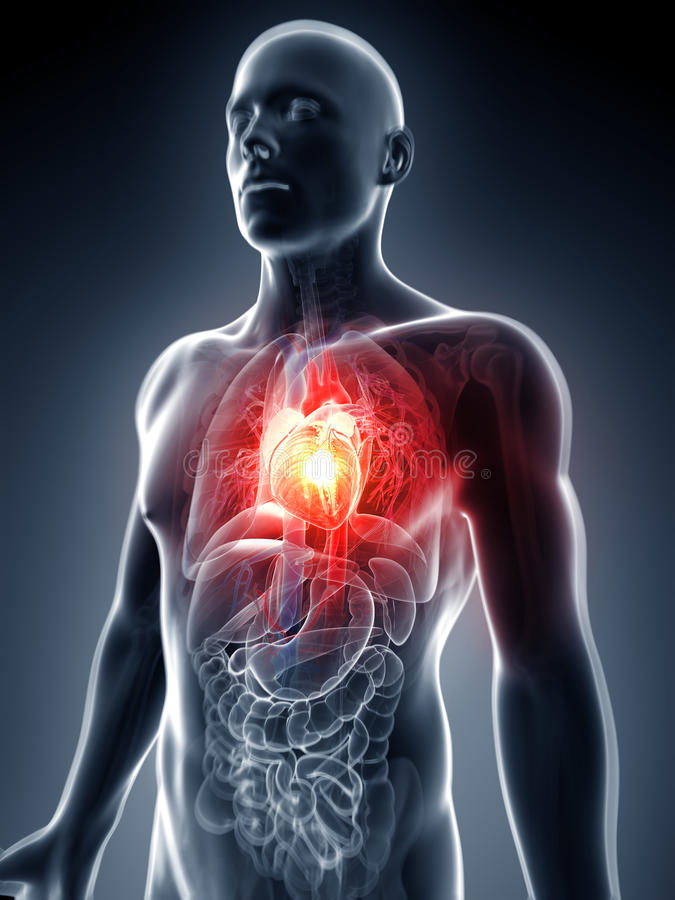 Cardíaco de ataque ilustração royalty free