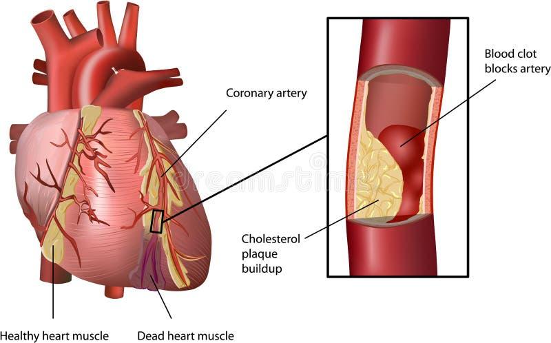 Cardíaco de ataque causado por Colesterol ilustração do vetor