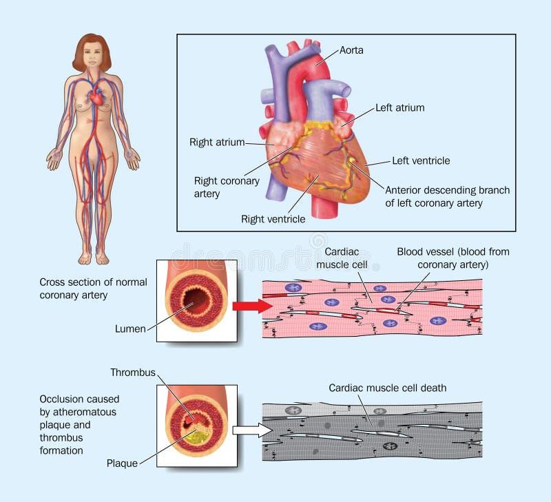 Cardíaco de ataque devido à artéria obstruída ilustração stock
