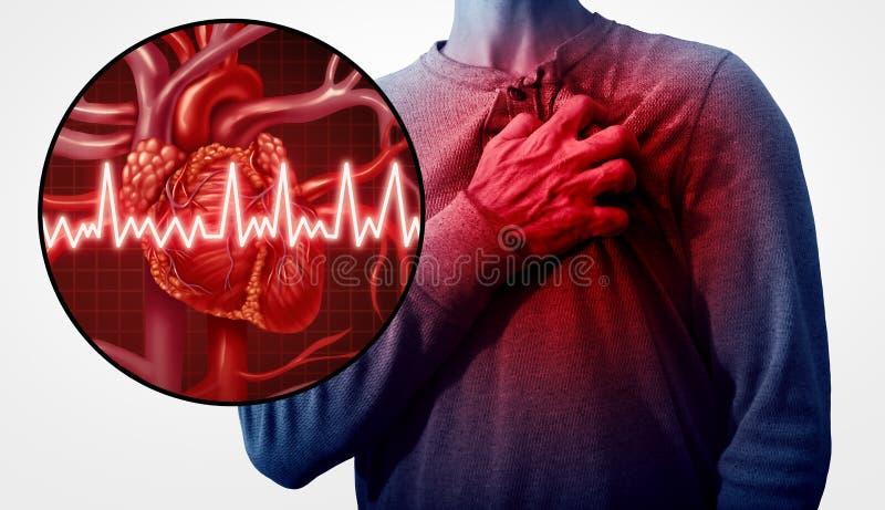 Cardíaco de ataque humano ilustração royalty free